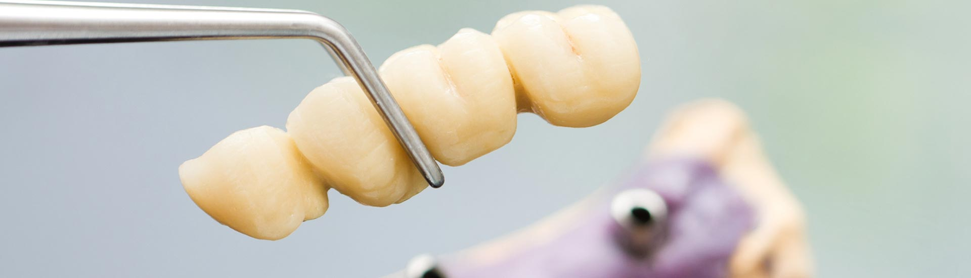 Change your look dental implant and get attractive teeth