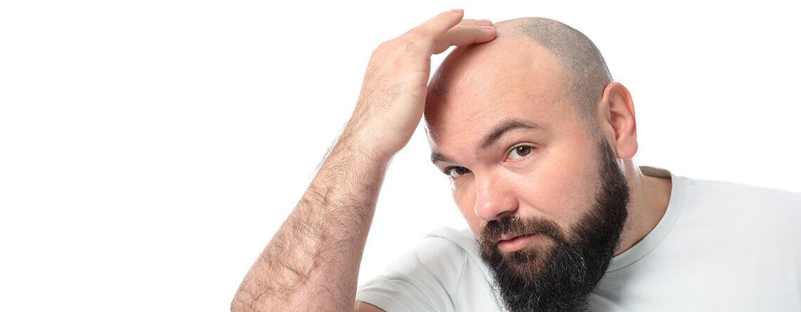 Hair Transplantation as the Best Hair Restoration Technique