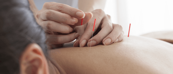 Learn some appealing benefits of acupuncture treatment